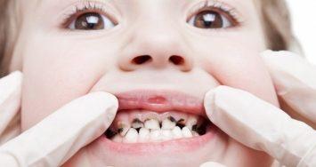 Top 10 Cách chữa sâu răng đơn giản và triệt để nhất