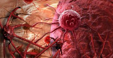 Top 10 Thực phẩm ăn nhiều sẽ khiến bạn có nguy cơ bị teo não, ung thư