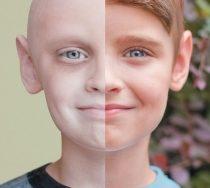 Top 8 Bệnh ung thư phổ biến nhất hiện nay bạn nên biết
