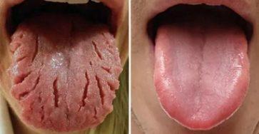 Top 9 Màu lưỡi bất thường báo hiệu cơ thể bạn mắc bệnh lý từ lâu